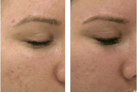 Before and After Micropen™ treatment by J. Kevin Duplechain, MD