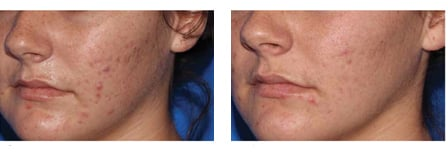 Before and After Micropen™ treatment by Dr. Nancy Samolitis